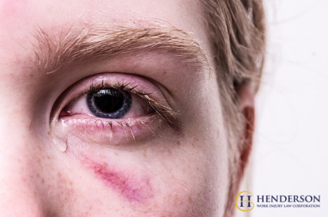 Types of Eye Injuries We Can Help With
